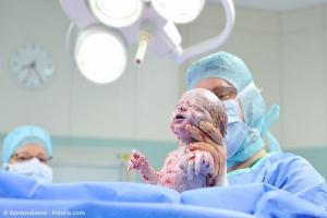 Kaiserschnitt Baby