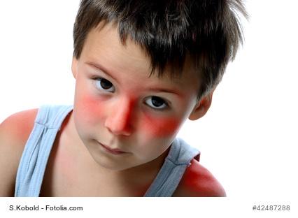Kind mit Sonnenbrand